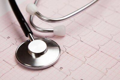 Картина Медицинский отчет и кардиограмма