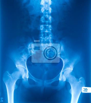 Рентгеновская пленка таза