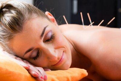 Фотообои Frau bei Akupunktur mit Nadeln im Rücken