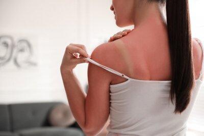 Фотообои Woman with sunburned skin at home, closeup
